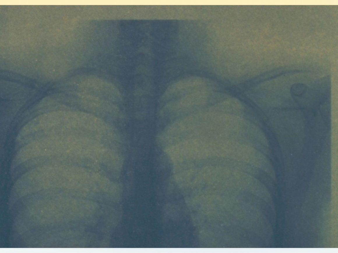 "The Body Undone Film Screening: ""Birha"""